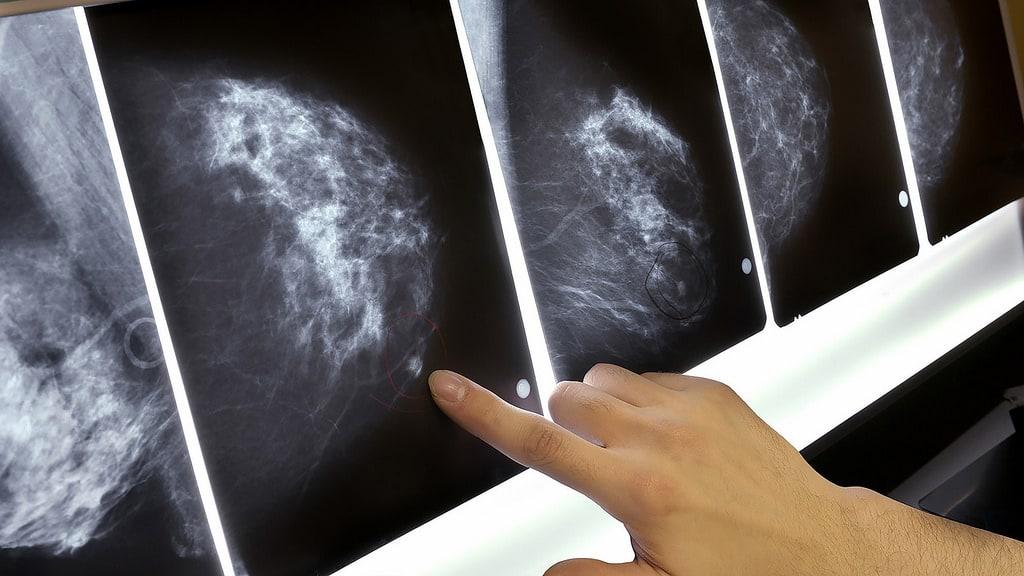 Cáncer de mama y el aumento de casos en España